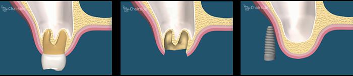 ایمپلنت تاخیری همراه با پیوند استخوان