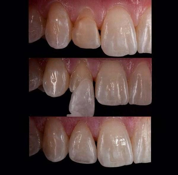 استفاده از لمینت دندان
