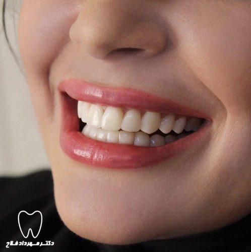 بروز مشکل برای دندان کامپوزیت ونیر