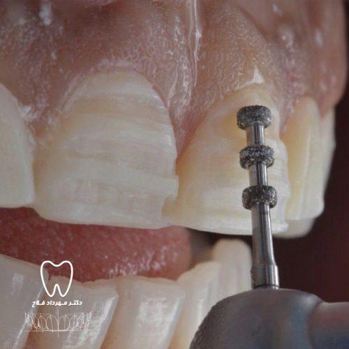مقدار تراش دندان ها در لمینت دندان