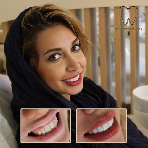 نمونه بیمار بعد از اصلاح لبخند لثه ای