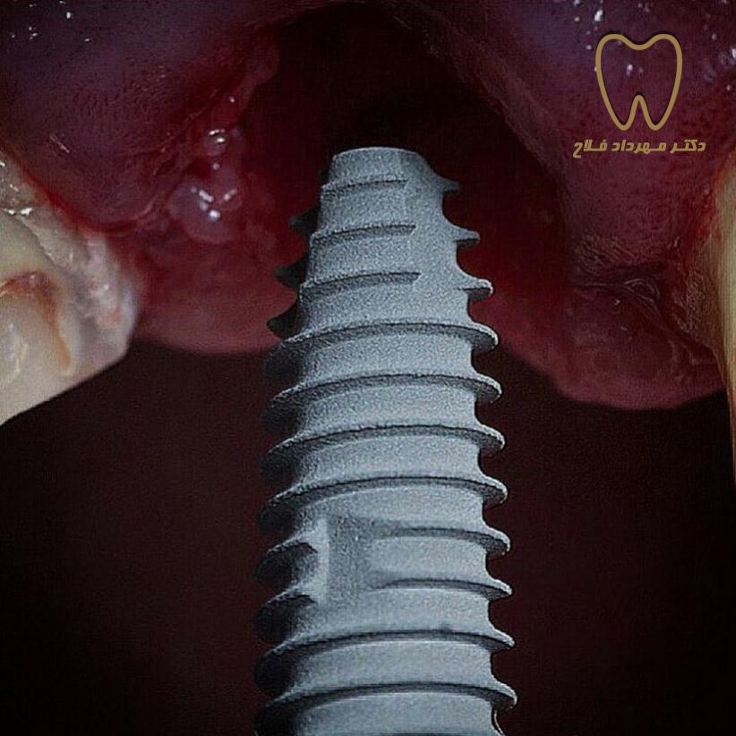 implant-2.jpg