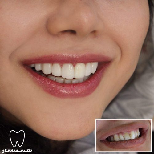 دندان لمینت شده