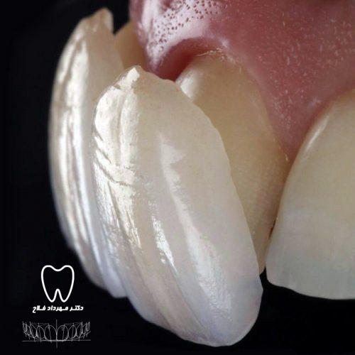 پوسته لمینت دندان