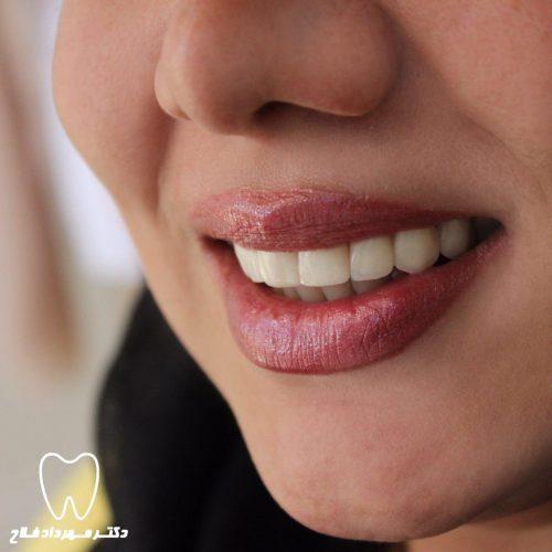 درمان لمینت دندان چند جلسه و چقدر زمان می برد