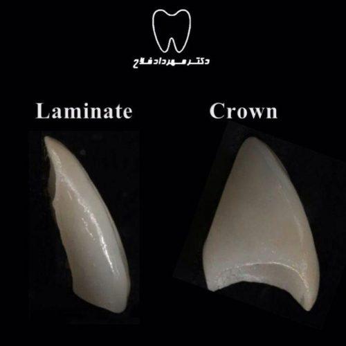 روکش دندان و لمینت دندان