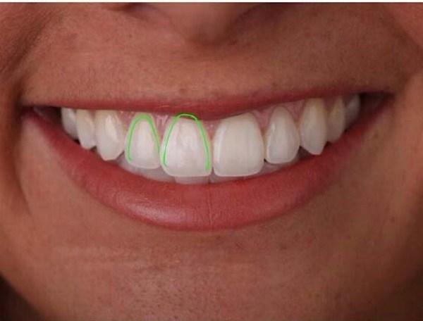 عمق فضاهای بین دندانی