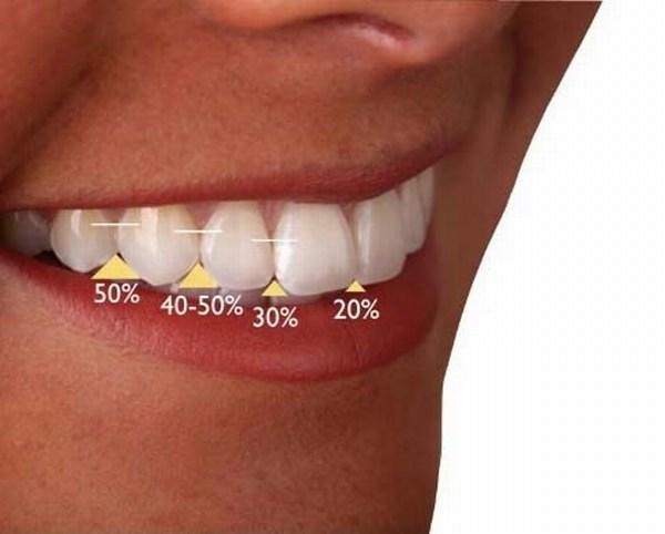لبه دندان های قدامی فک بالا