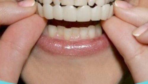 اسنپ دندان