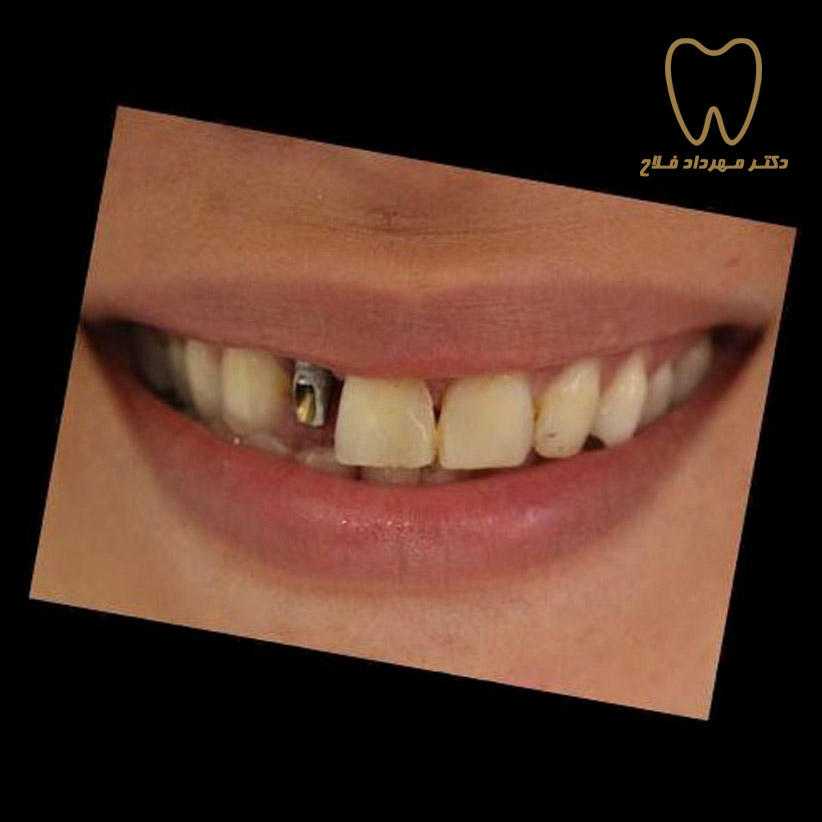 step-implant-1.jpg