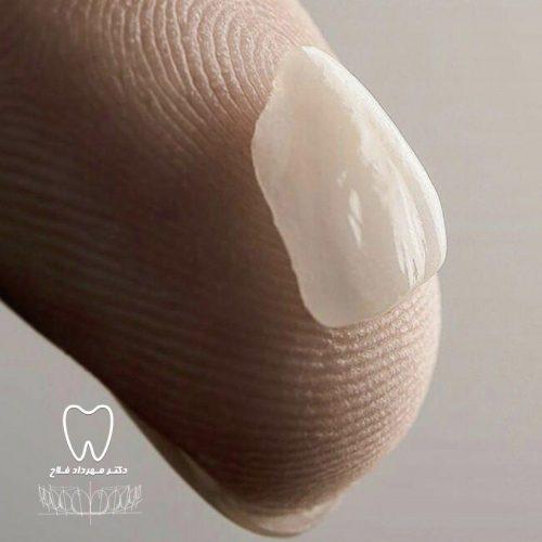 انواع لمینت سرامیکی