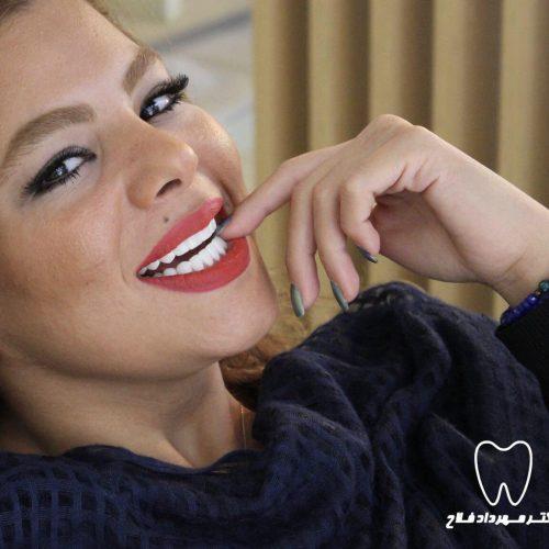 بیمار درمان شده توسط لمینت دندان