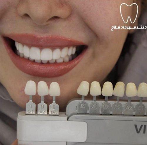انتخاب رنگ در كامپوزيت ونير دندان