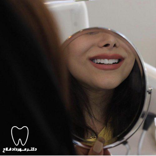 زیبا سازی لبخند