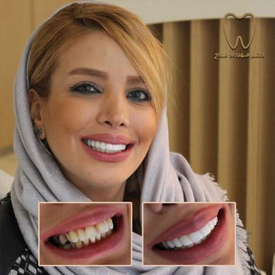 مرتب کردن دندان ها