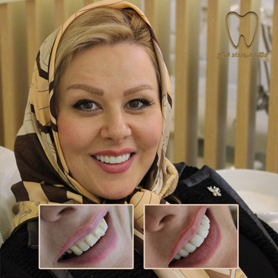 اصلاح شکل دندان ها