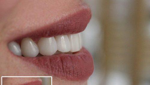 کاربردهای لمینت دندان
