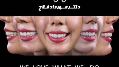 مزایا کامپوزیت دندان