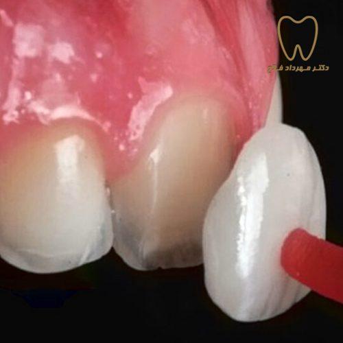 پوسته سرامیکی لمینت کردن دندان