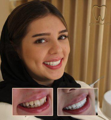 نمونه لمینت کردن دندان