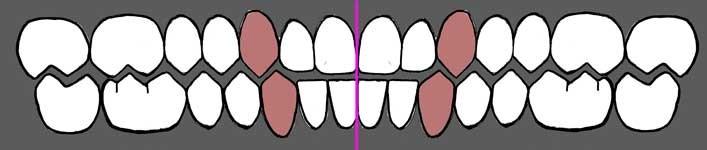 اصلاح خط میانی لبخند