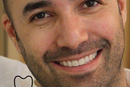 چگونگی اصلاح طرح لبخند