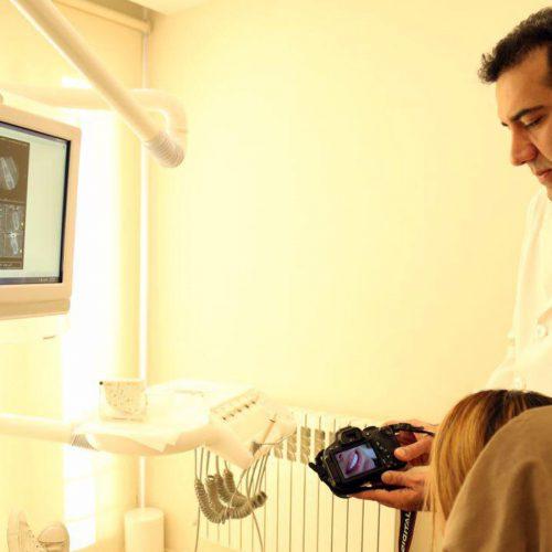 فرایند قالب گیری و ساخت لمینت دندان