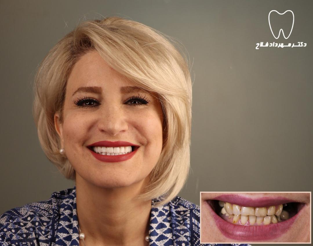 ویژگی لمینت دندان