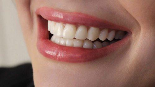 رفع شکستگی دندان با کامپوزیت ونیر