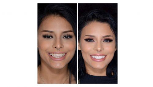 سفیدی و کدری دندان