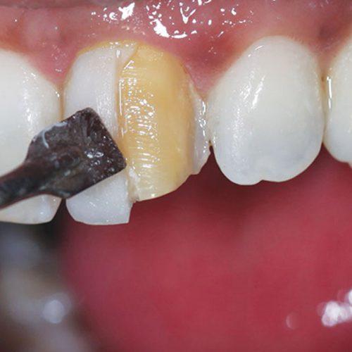 کامپوزیت برای ترمیم یا زیبایی دندان