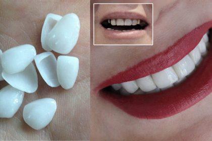 لمینت دندان موقت