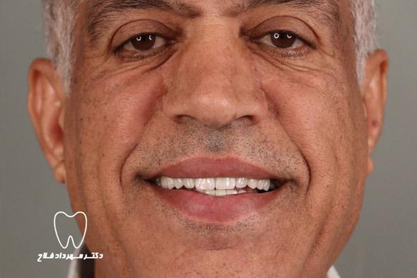 عمر لمینت دندان