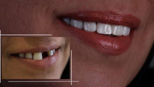 لق شدن ایمپلنت دندان